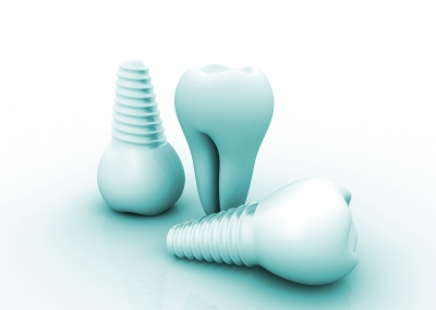 Dental Implants Cache valley